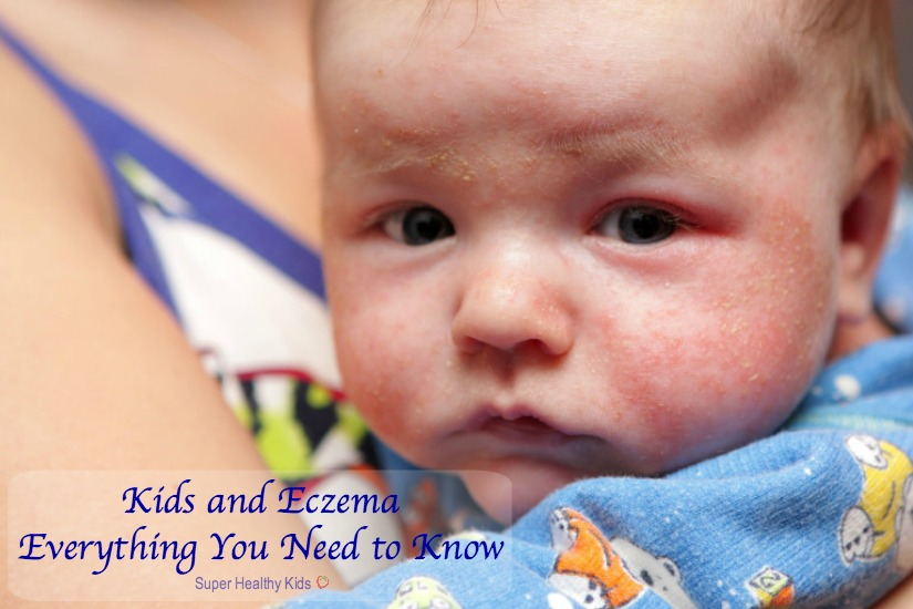 Kids and Eczema: Everything You Need to Know. This is eczema on face of newborn. http://www.superhealthykids.com/kids-and-eczema-everything-you-need-to-know/