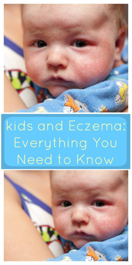 ids and Eczema: Everything You Need to Know