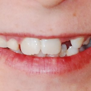 Kids and Cavities